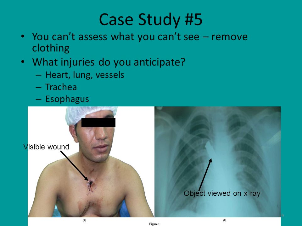99 Case Study #5 You cant assess what you cant see – remove clothing What injuries do you anticipate? – Heart, lung, vessels – Trachea – Esophagus Vis