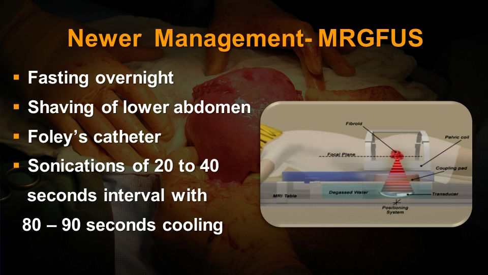 Newer Management- MRGFUS Permitted by FDA since 2004 Permitted by FDA since 2004 MRI guidance is used to direct ultrasound to tissues to elicit coagul