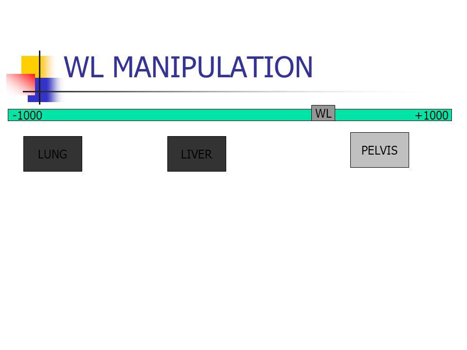 WL MANIPULATION LUNGLIVER PELVIS -1000 +1000 WL