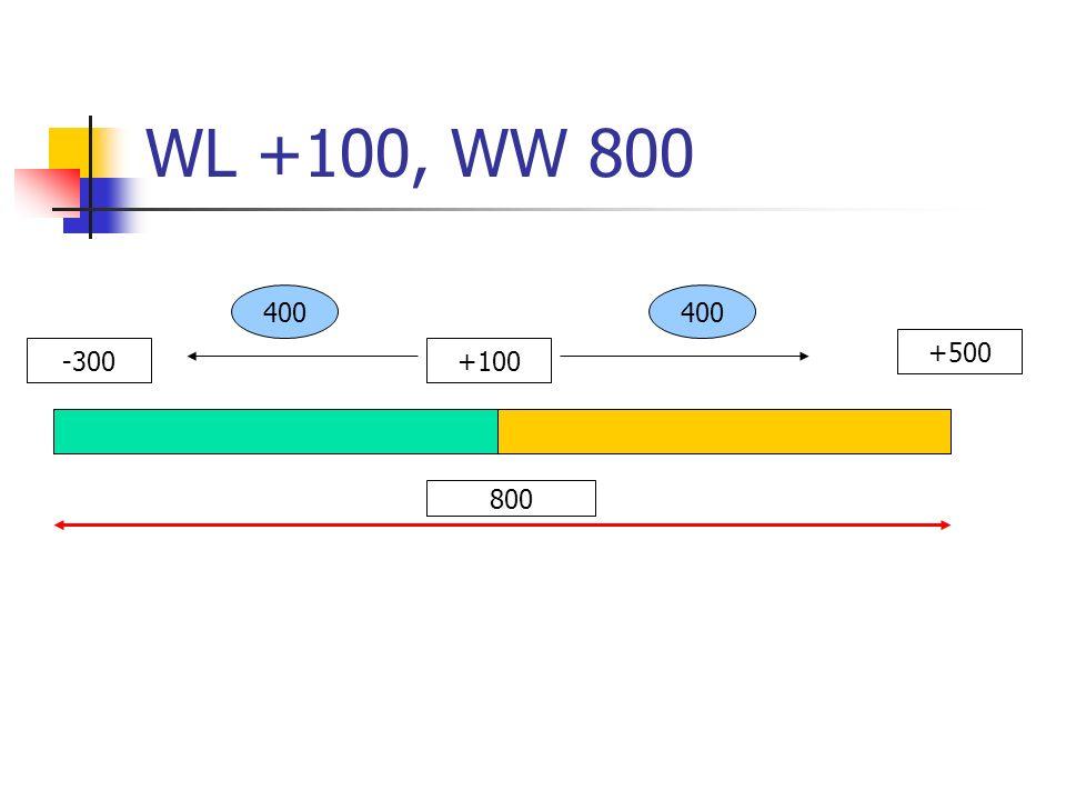 WL +100, WW 800 -300+100 +500 800 400