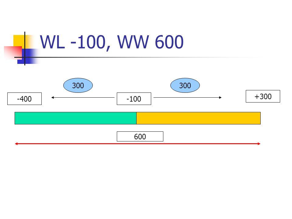 WL -100, WW 600 -400-100 +300 600 300