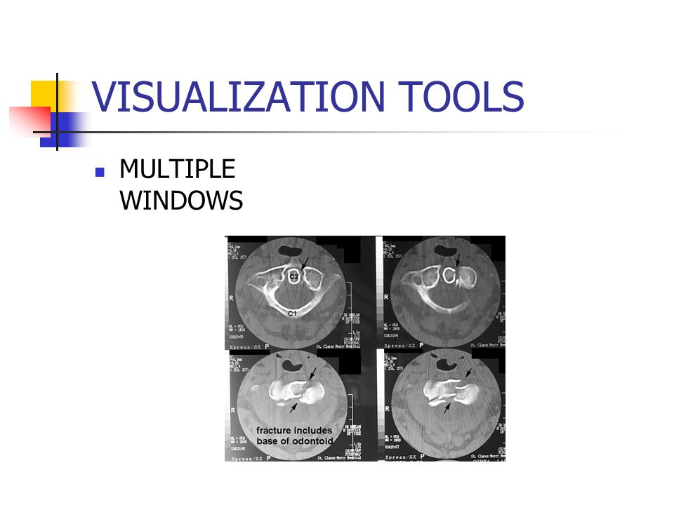 VISUALIZATION TOOLS MULTIPLE WINDOWS