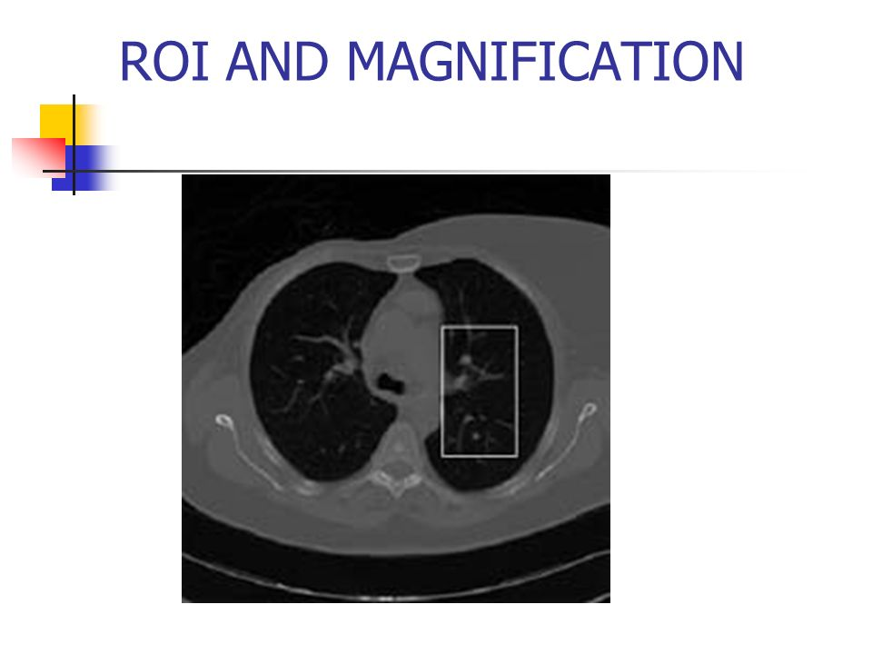 ROI AND MAGNIFICATION