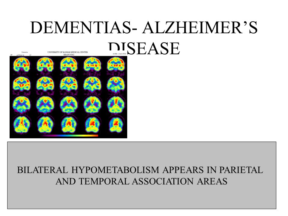 DEMENTIAS- ALZHEIMERS DISEASE BILATERAL HYPOMETABOLISM APPEARS IN PARIETAL AND TEMPORAL ASSOCIATION AREAS