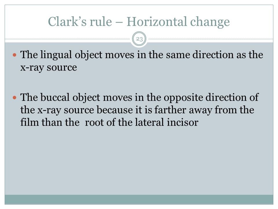 Clarks rule – Horizontal change The lingual object moves in the same direction as the x-ray source The buccal object moves in the opposite direction o