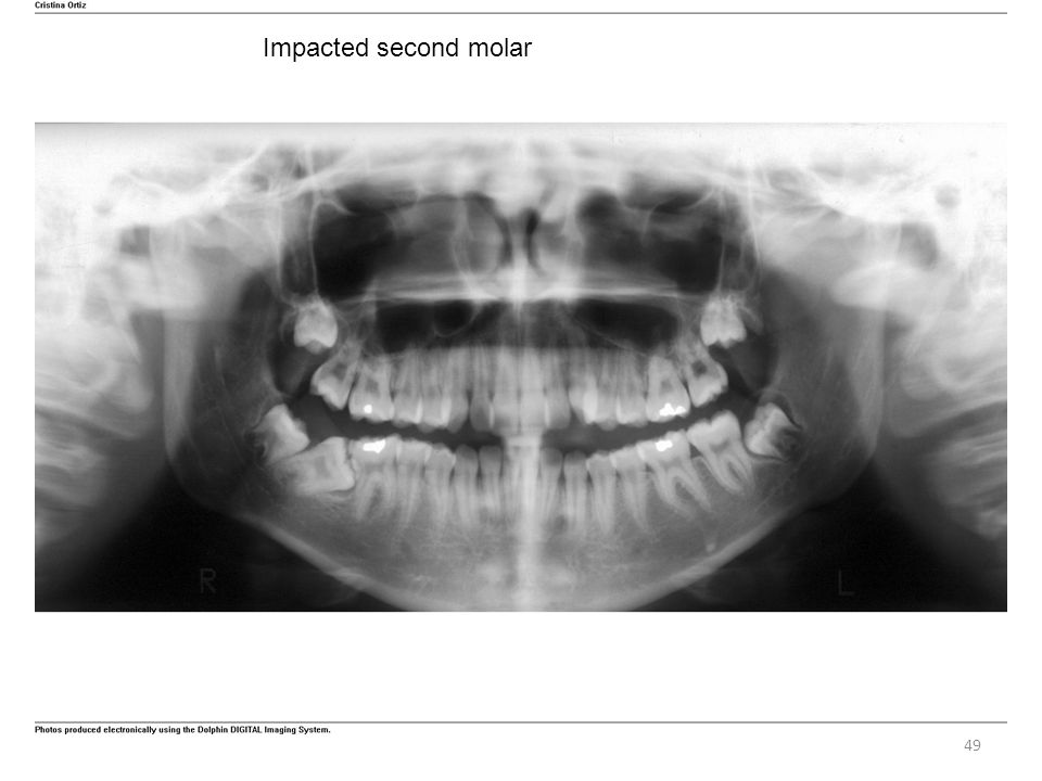 49 Impacted second molar