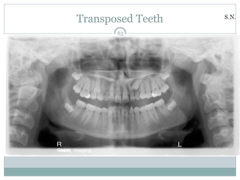 Transposed Teeth S.N. 63