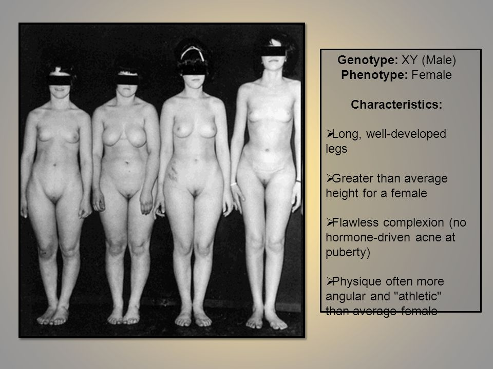 Genotype: XY (Male) Phenotype: Female Characteristics: Long, well-developed legs Greater than average height for a female Flawless complexion (no horm