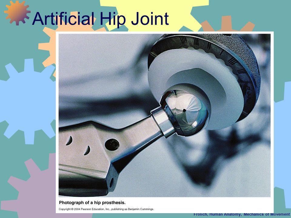 Frolich, Human Anatomy, Mechanics of Movement Artificial Hip Joint