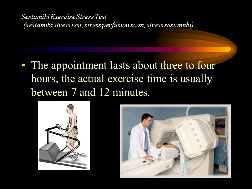 The appointment lasts about three to four hours, the actual exercise time is usually between 7 and 12 minutes. Sestamibi Exercise Stress Test (sestami