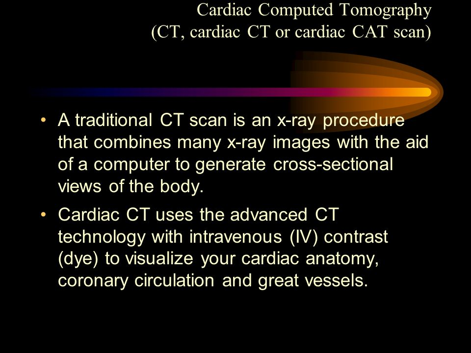 Cardiac Computed Tomography (CT, cardiac CT or cardiac CAT scan) A traditional CT scan is an x-ray procedure that combines many x-ray images with the