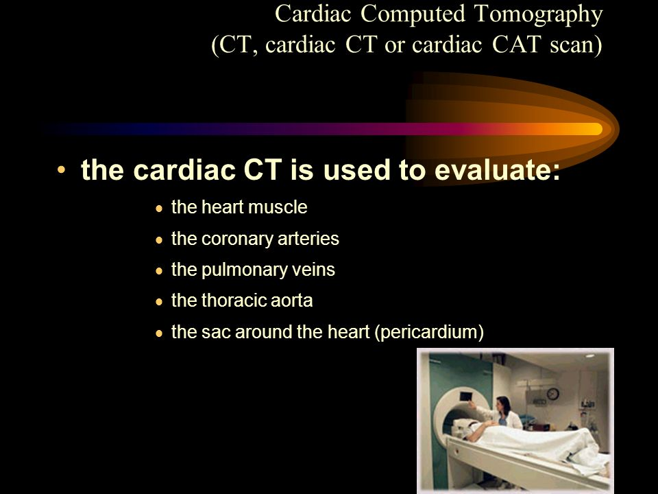 the cardiac CT is used to evaluate: the heart muscle the coronary arteries the pulmonary veins the thoracic aorta the sac around the heart (pericardiu