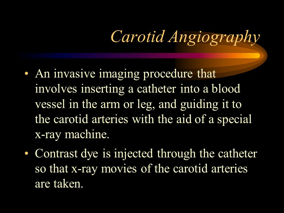 Carotid Angiography An invasive imaging procedure that involves inserting a catheter into a blood vessel in the arm or leg, and guiding it to the caro