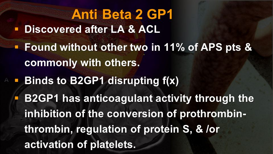 Anti Beta 2 GP1 Discovered after LA & ACL Discovered after LA & ACL Found without other two in 11% of APS pts & commonly with others. Found without ot