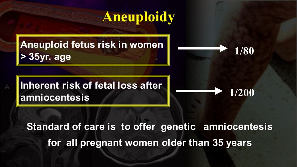 Standard of care is to offer genetic amniocentesis for all pregnant women older than 35 years Aneuploidy Aneuploid fetus risk in women > 35yr. age Inh