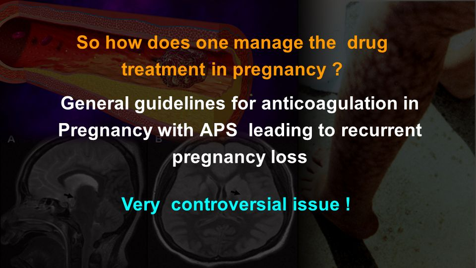 General guidelines for anticoagulation in Pregnancy with APS leading to recurrent pregnancy loss So how does one manage the drug treatment in pregnanc