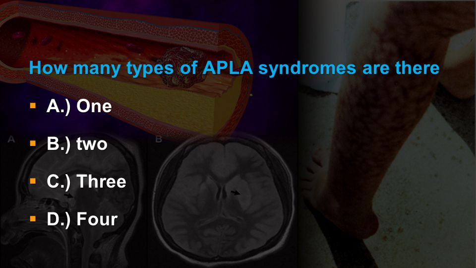 How many types of APLA syndromes are there A.) One A.) One B.) two B.) two C.) Three C.) Three D.) Four D.) Four