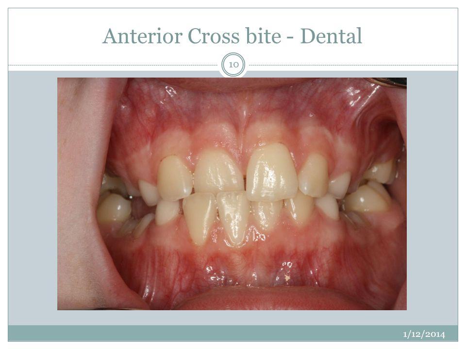 Anterior Cross bite - Dental 1/12/2014 10