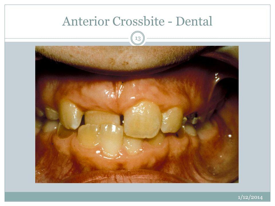 Anterior Crossbite - Dental 1/12/2014 13