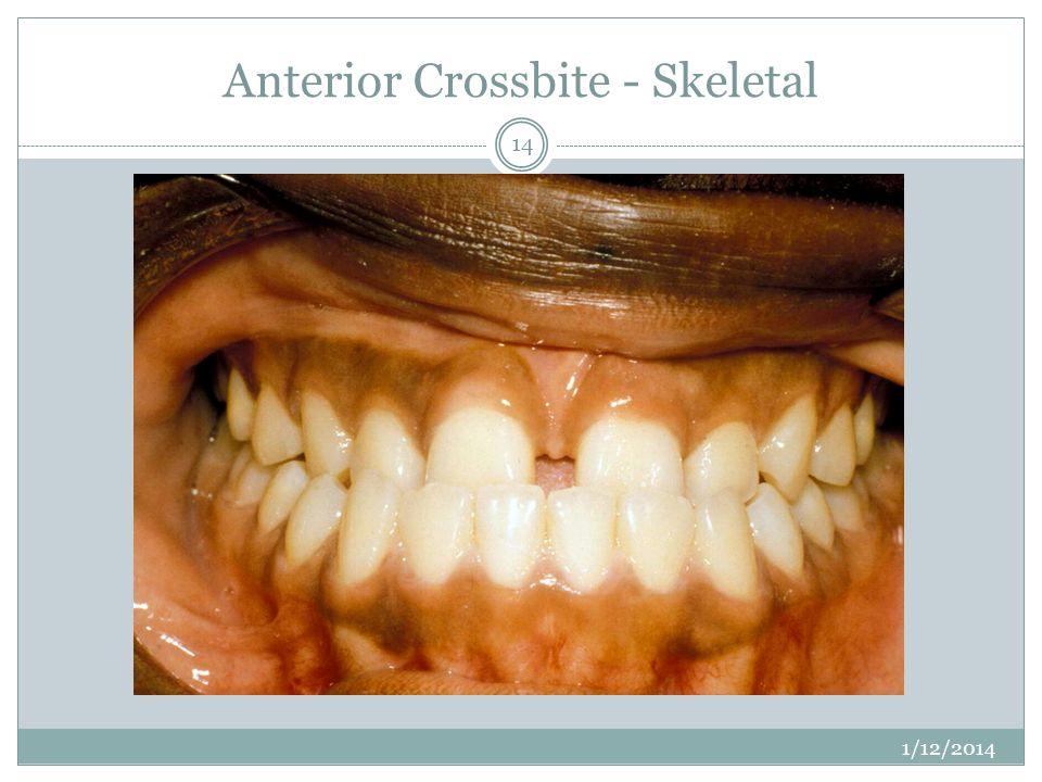 Anterior Crossbite - Skeletal 1/12/2014 14