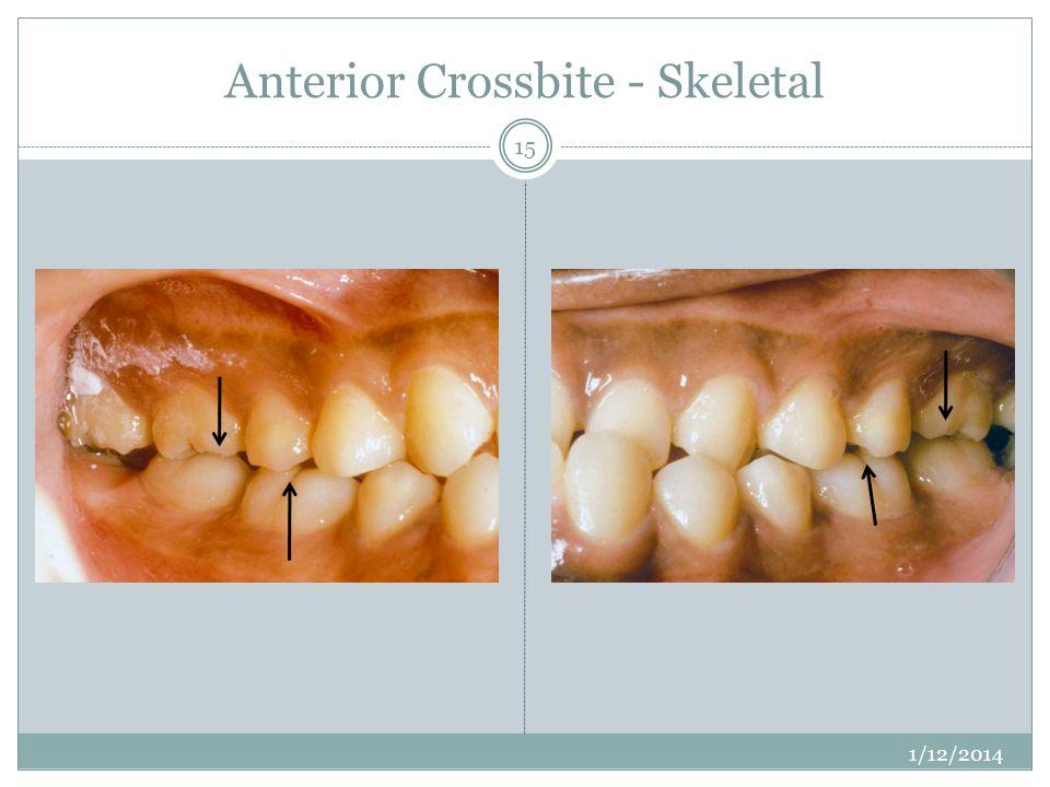 Anterior Crossbite - Skeletal 1/12/2014 15