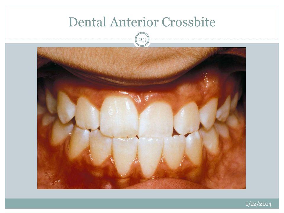 Dental Anterior Crossbite 1/12/2014 23