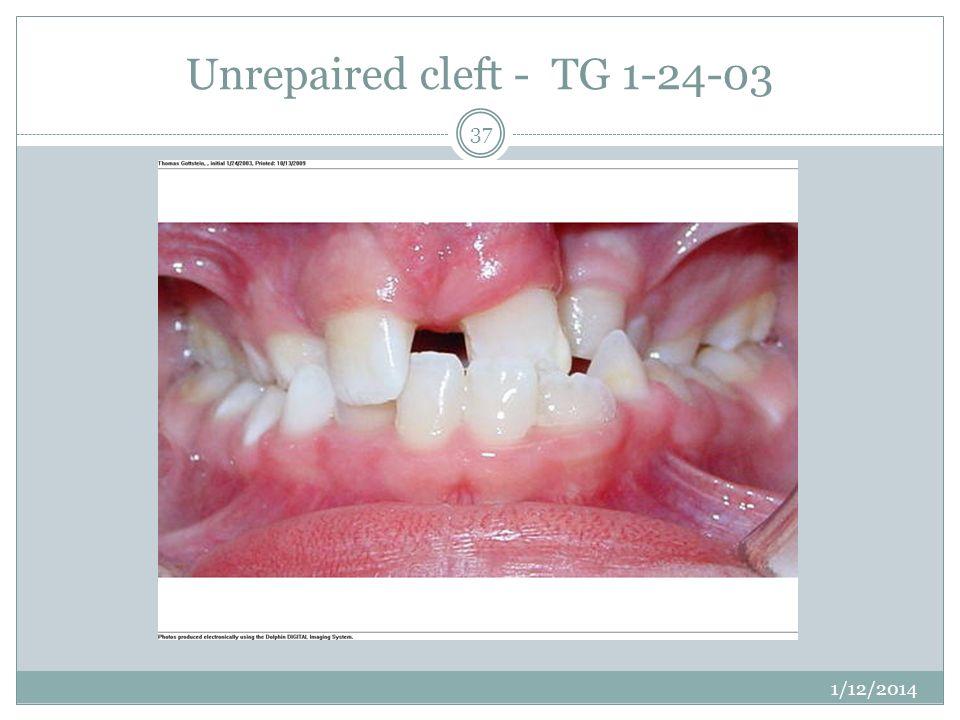Unrepaired cleft - TG 1-24-03 1/12/2014 37