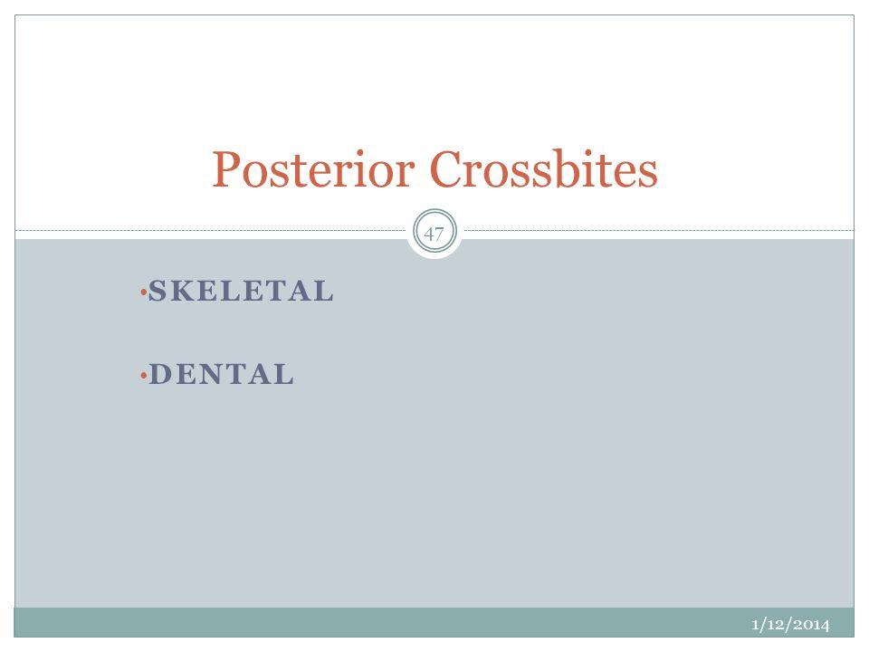 SKELETAL DENTAL Posterior Crossbites 1/12/2014 47