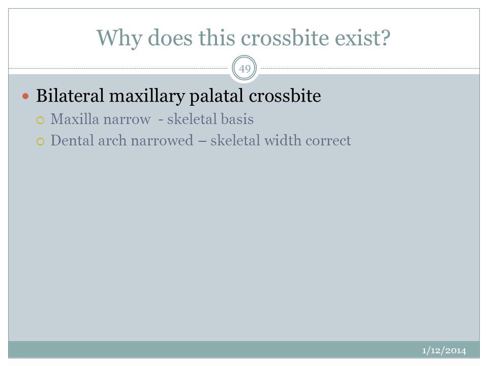 Why does this crossbite exist? Bilateral maxillary palatal crossbite Maxilla narrow - skeletal basis Dental arch narrowed – skeletal width correct 1/1