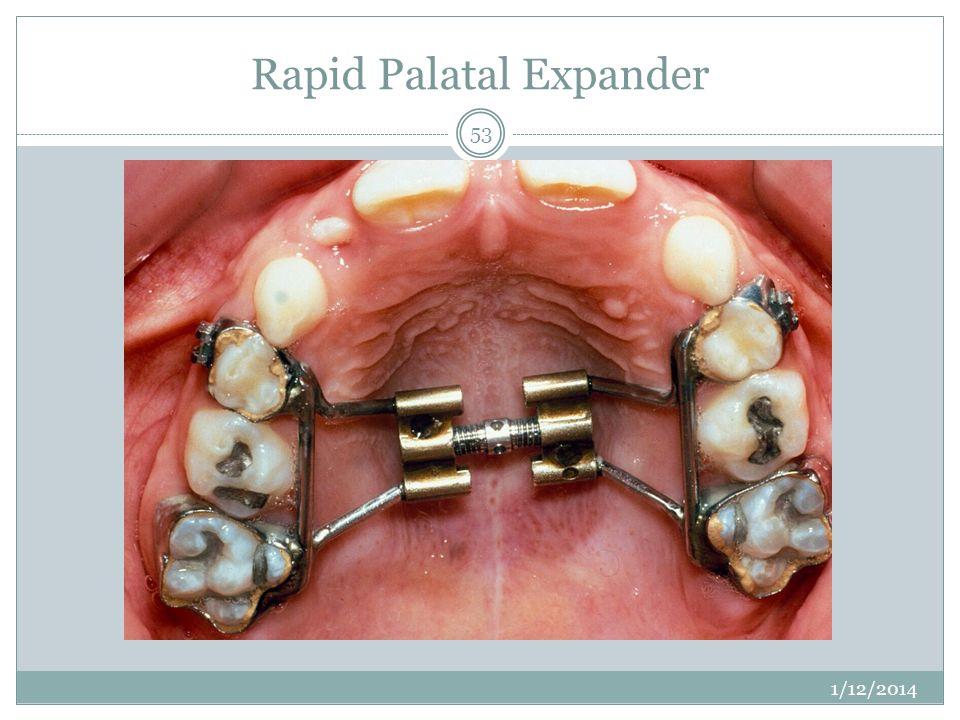 Rapid Palatal Expander 1/12/2014 53