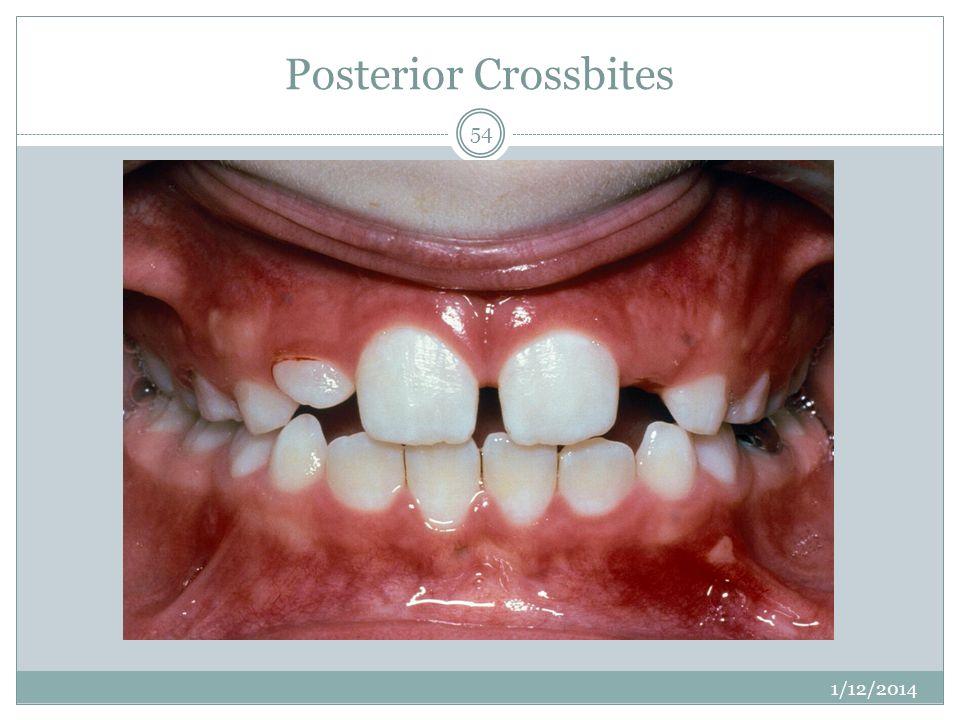 Posterior Crossbites 1/12/2014 54