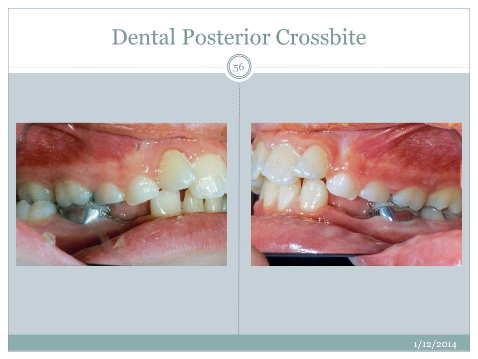 Dental Posterior Crossbite 1/12/2014 56