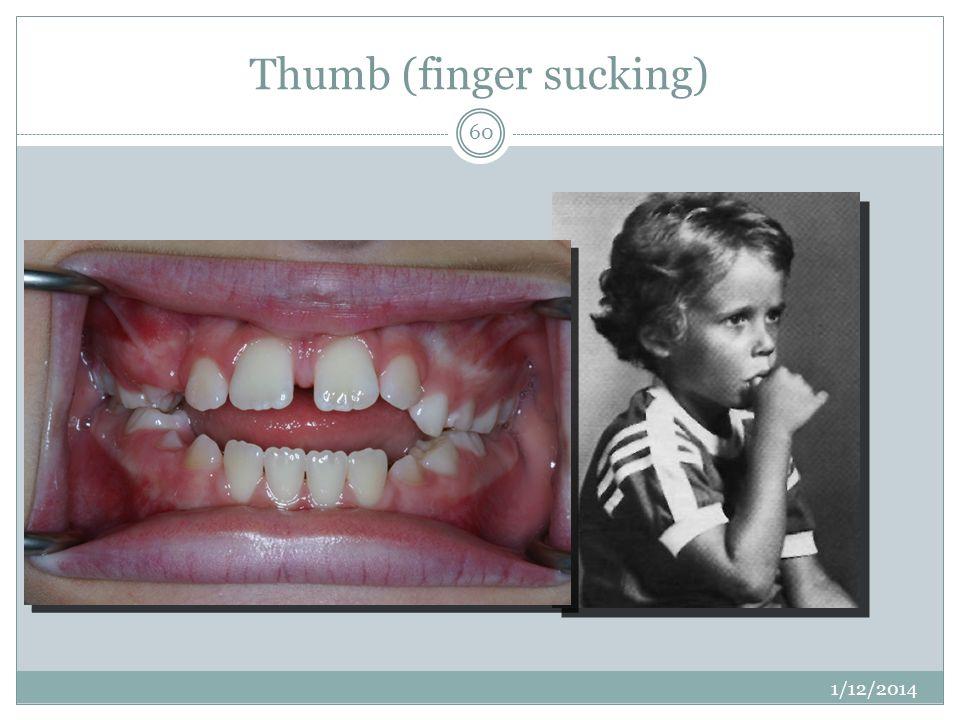 Thumb (finger sucking) 1/12/2014 60