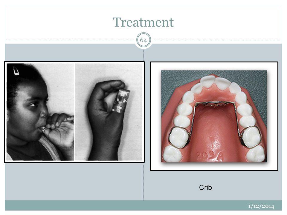 Treatment 1/12/2014 64 Crib