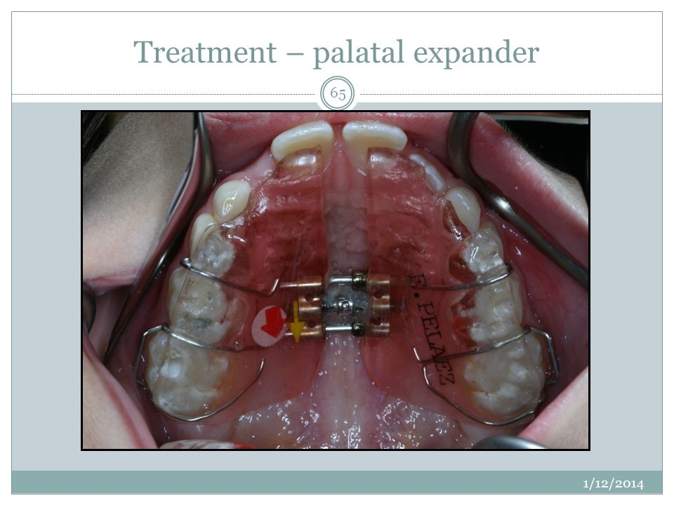 Treatment – palatal expander 1/12/2014 65
