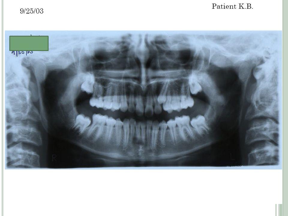 17 9/25/03 Patient K.B.