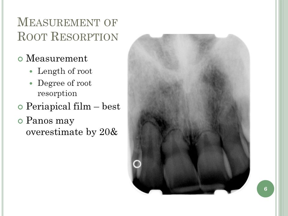 M EASUREMENT OF R OOT R ESORPTION 6 Measurement Length of root Degree of root resorption Periapical film – best Panos may overestimate by 20&