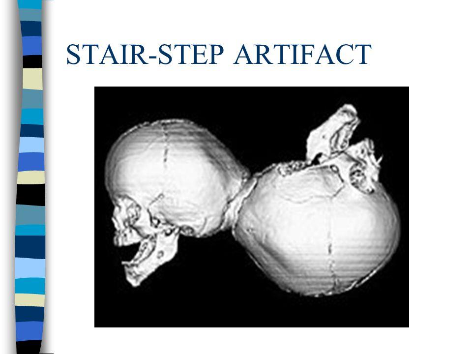 STAIR-STEP ARTIFACT