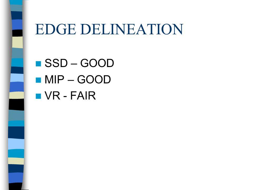 EDGE DELINEATION SSD – GOOD MIP – GOOD VR - FAIR