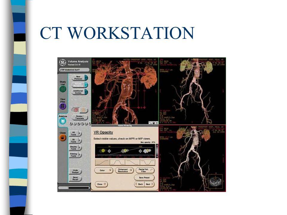 CT WORKSTATION