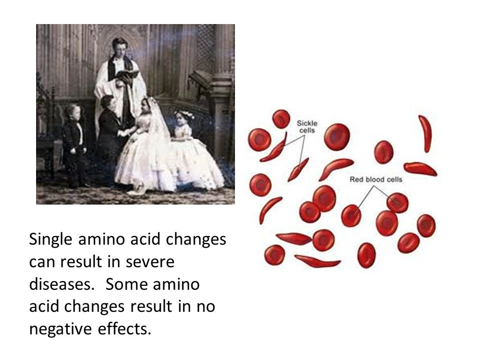 Single amino acid changes can result in severe diseases. Some amino acid changes result in no negative effects.