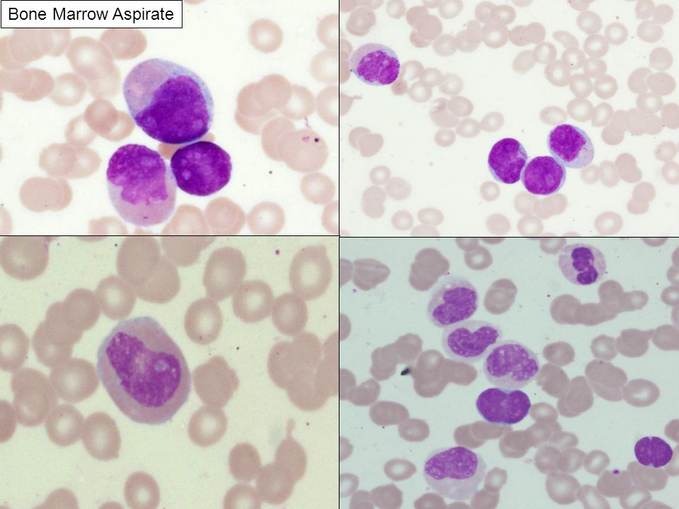 Bone Marrow Aspirate