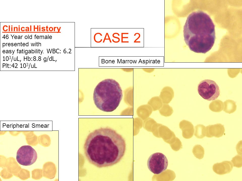 Peripheral Smear CASE 2 Clinical History 46 Year old female presented with easy fatigability.