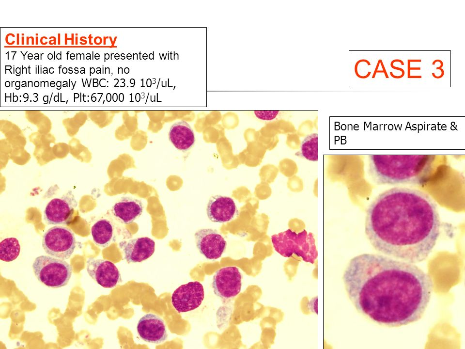 Bone Marrow Aspirate & PB Clinical History 17 Year old female presented with Right iliac fossa pain, no organomegaly WBC: 23.9 10 3 /uL, Hb:9.3 g/dL, Plt:67,000 10 3 /uL CASE 3