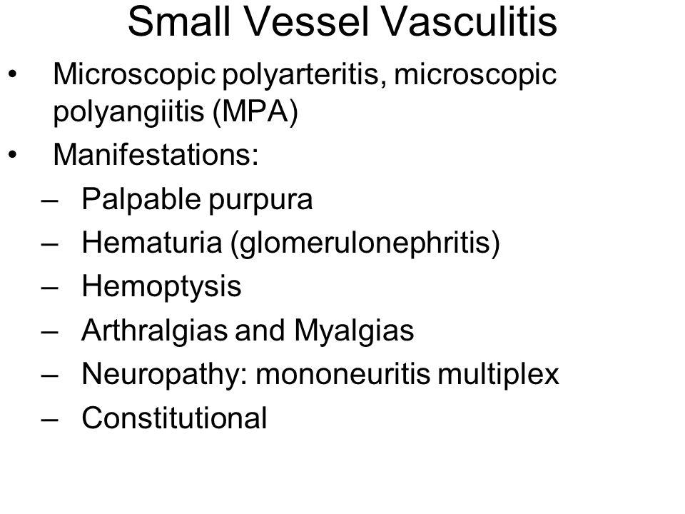 Small Vessel Vasculitis Microscopic polyarteritis, microscopic polyangiitis (MPA) Manifestations: –Palpable purpura –Hematuria (glomerulonephritis) –H