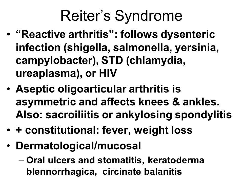 Reiters Syndrome Reactive arthritis: follows dysenteric infection (shigella, salmonella, yersinia, campylobacter), STD (chlamydia, ureaplasma), or HIV