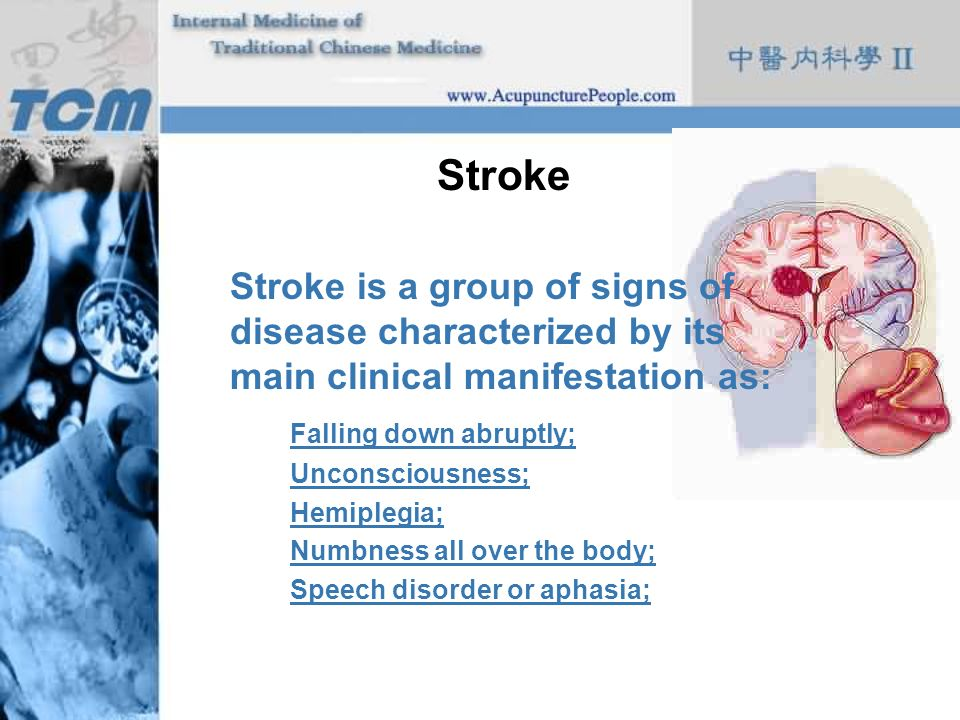 Stroke Stroke is a group of signs of disease characterized by its main clinical manifestation as: Falling down abruptly; Unconsciousness; Hemiplegia;