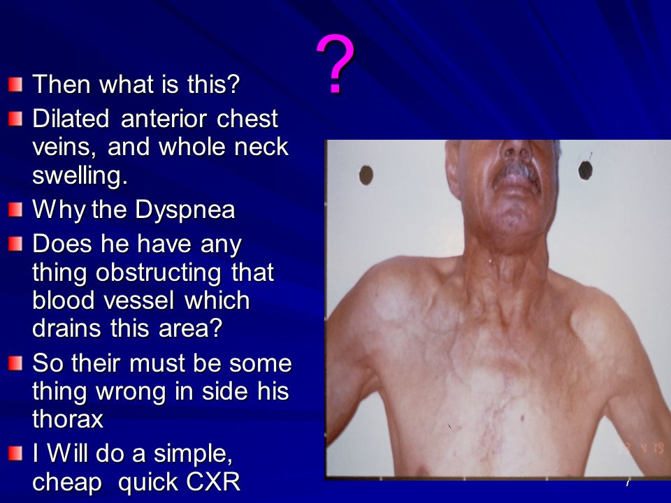 7 ? Then what is this? Dilated anterior chest veins, and whole neck swelling. Why the Dyspnea Does he have any thing obstructing that blood vessel whi
