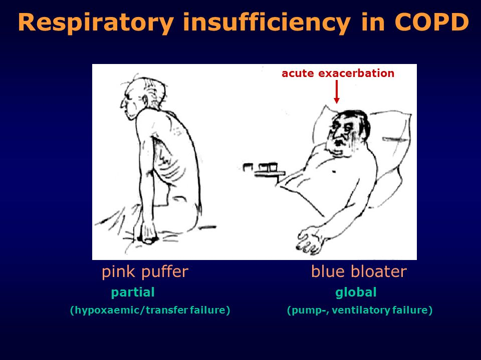Respiratory insufficiency in COPD pink puffer blue bloater partial global (hypoxaemic/transfer failure) (pump-, ventilatory failure) acute exacerbatio