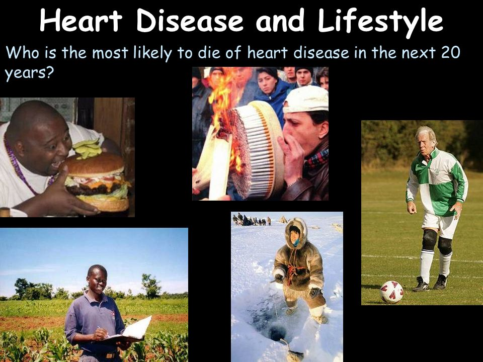 Heart Disease and Lifestyle Who is the most likely to die of heart disease in the next 20 years?